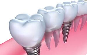 best dental implants in Melbourne